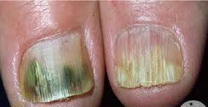 Onicomicosis (Hongos en las uñas)